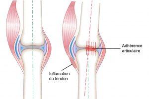 Comparatif articulation saine / articulation gauchie