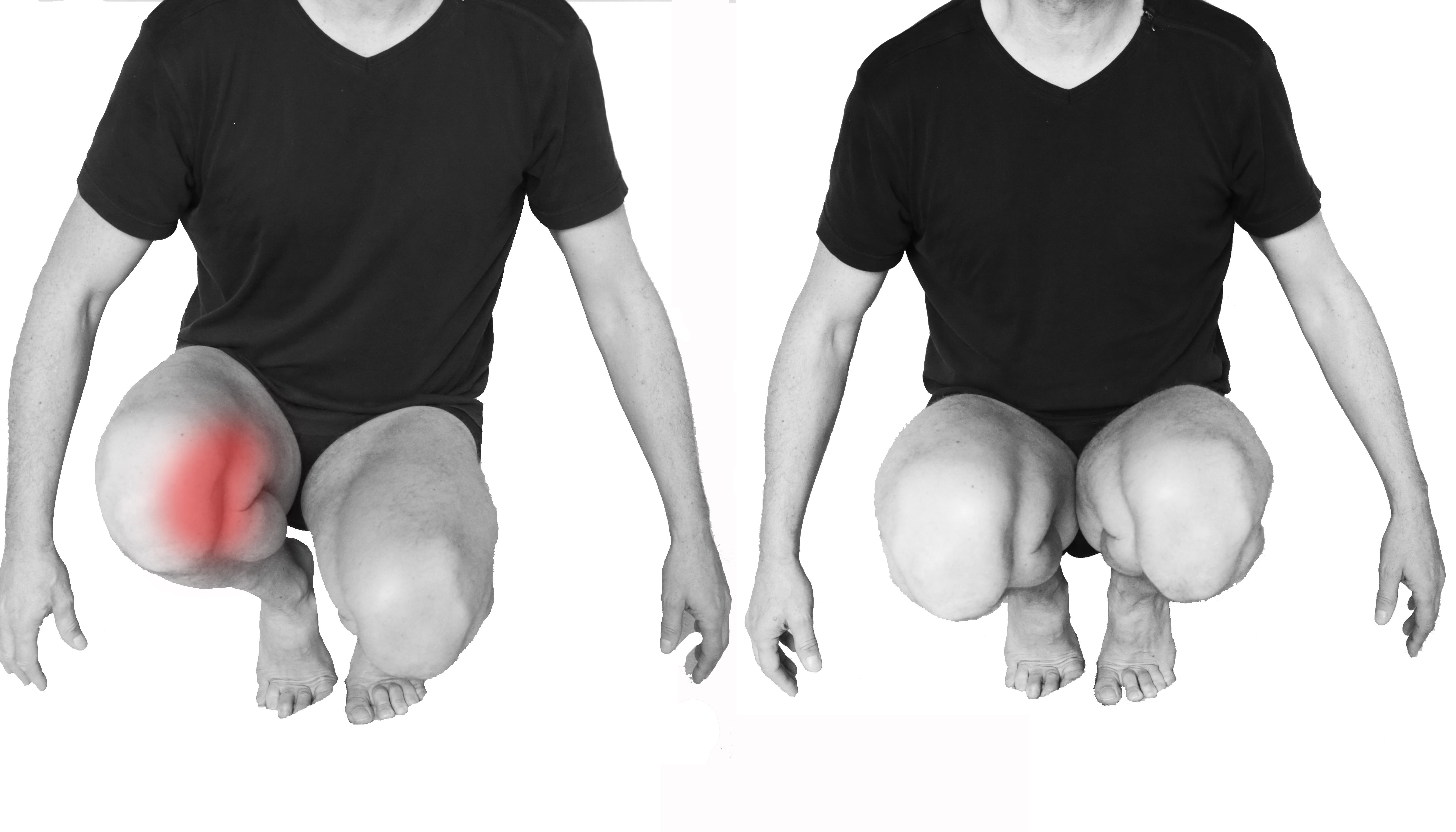 Douleur au genou marc seguin ost o rebouteux montmiral for Douleur sur le cote exterieur du genou