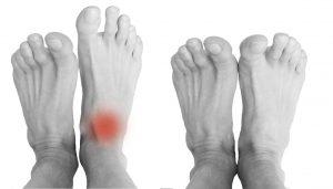 Douleurs de la cheville - Douleurs du pied