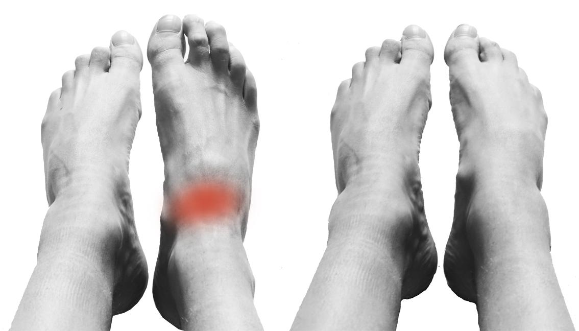 douleur dessus du pied et cheville