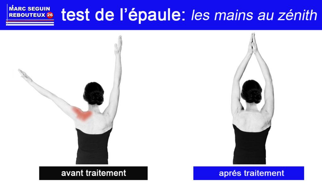 Les dysfonctionnements articulaires empêchent les mouvement de l'épaule.